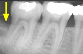 Periodontal Gallery - Bone Graft
