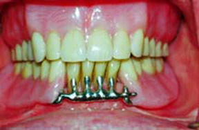 Dentures Gallery Case 4