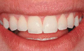 Porcelain Veneers Gallery Case 2