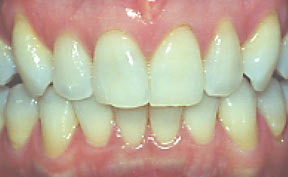 Porcelain Veneers Gallery Case 12